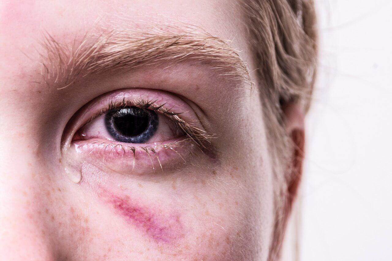 Photo d'un jeune homme avec un oeil au bord noir qui pleur